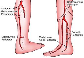 Операции на ноги при варикозе